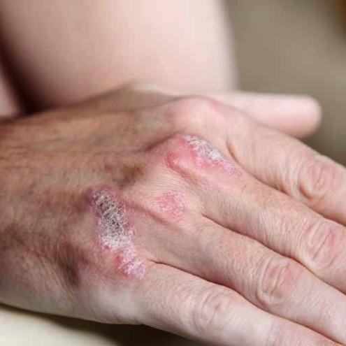 Psoriasis : ne pas céder au découragement