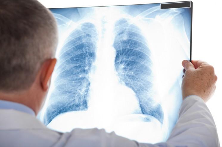 Tout savoir sur la fibrose pulmonaire idiopathique
