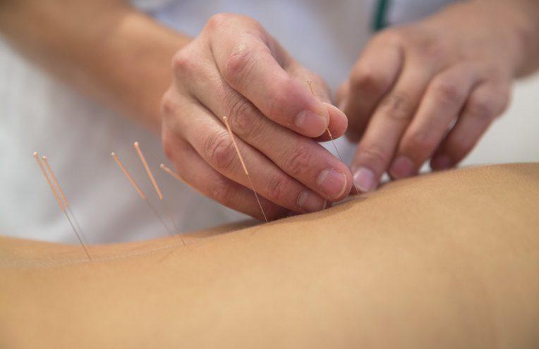 « L'acupuncture, oui, j'avoue, ça m'a aidé »