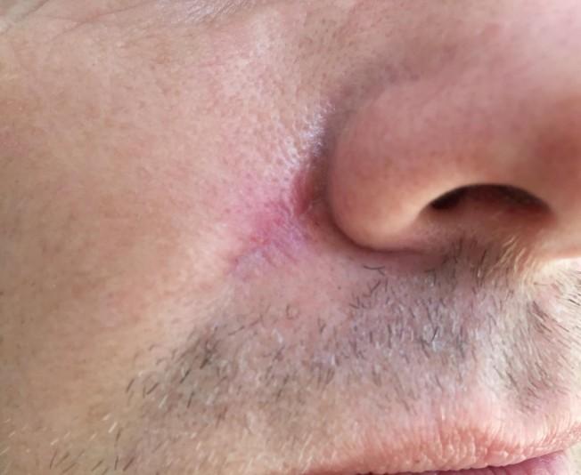 cicatrice-cancer-de-la-peau-652x534