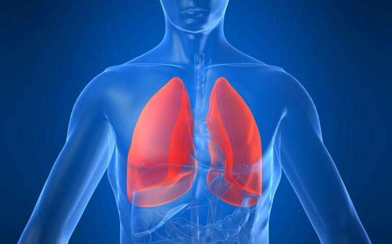 Fibrose pulmonaire idiopathique : encore trop de retards dans le diagnostic