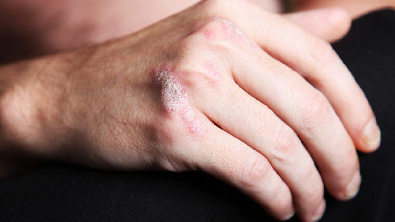 Psoriasis : bien plus qu'une maladie de peau - qrsun.fr