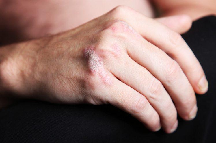 Le psoriasis a failli ruiner sa vie amoureuse