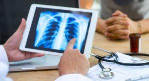 Cancer du poumon : les nouveaux traitements alimentent les espoirs