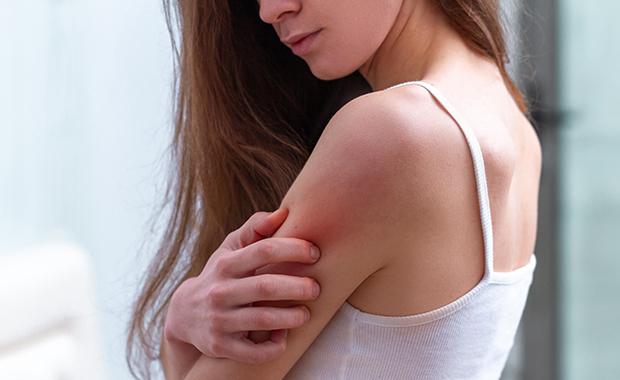 Psoriasis et eczéma : comment soulager les poussées ?